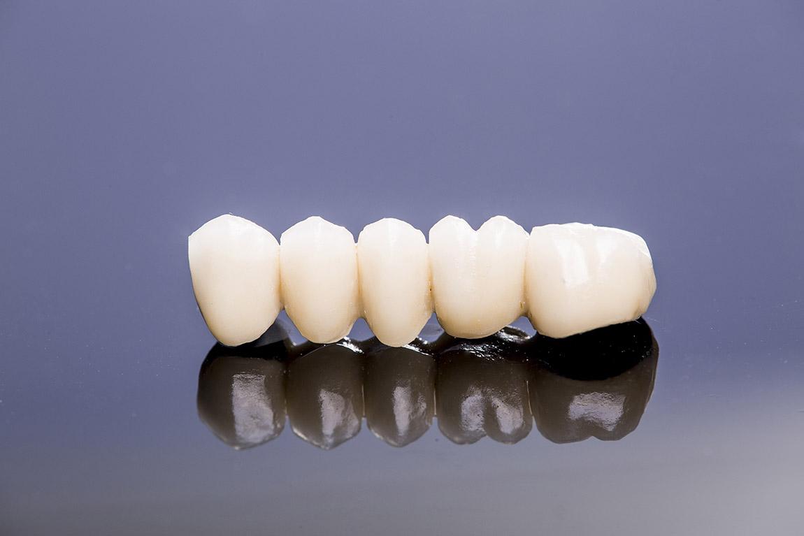 Fotografía odontológica - 2021
